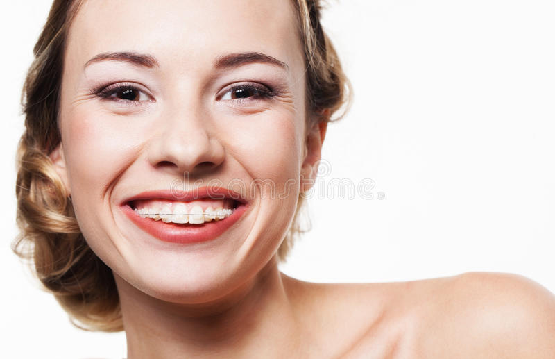 Smile with dental braces stock photos