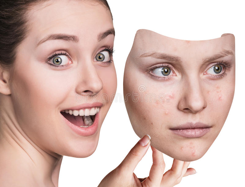 Young woman puts away mask with bad skin. royalty free stock photography