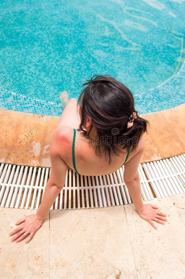 Young woman with red sunburned skin on her shoulder sitting near swimming pool stock photo