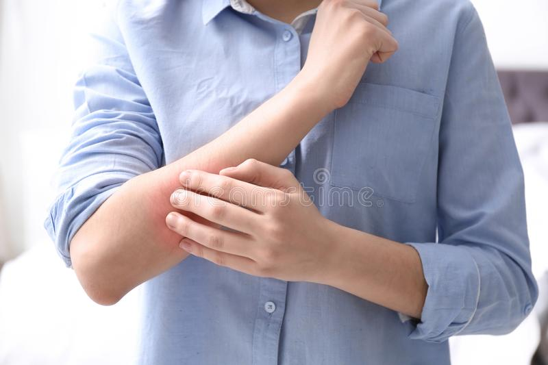 Young woman scratching hand indoors. Allergies symptoms. Young woman scratching hand indoors, closeup. Allergies symptoms stock image