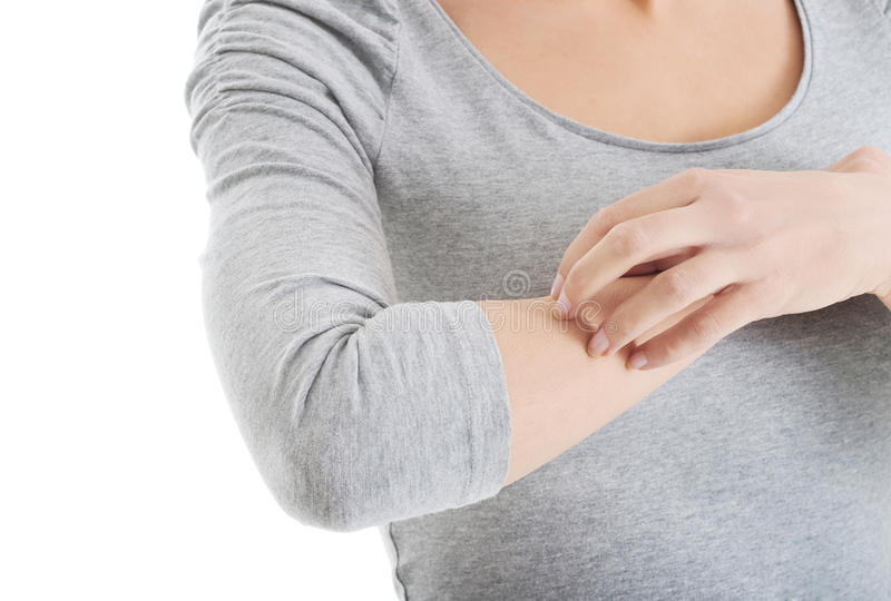 Young woman is scratching herself on arm. stock image