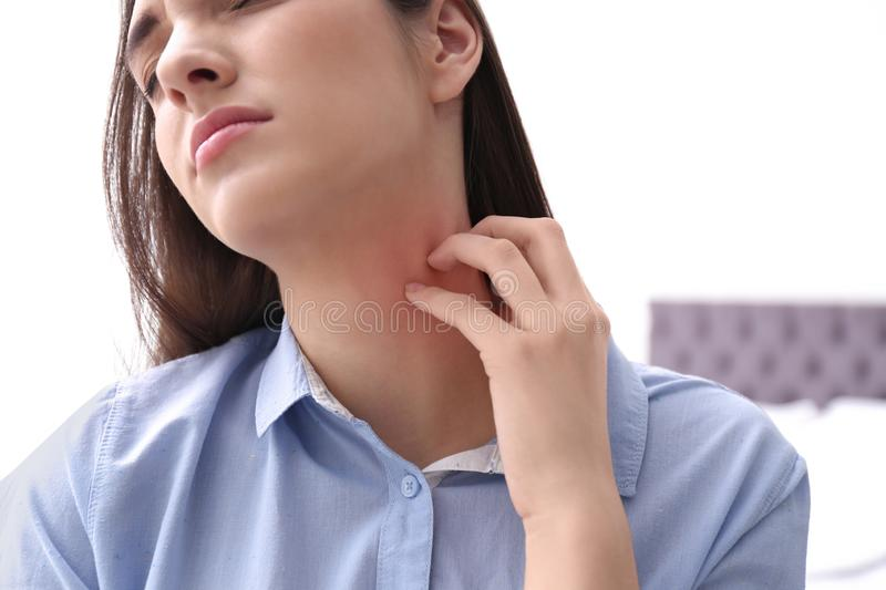 Young woman scratching neck indoors. Allergies symptoms. Young woman scratching neck indoors, closeup. Allergies symptoms stock images