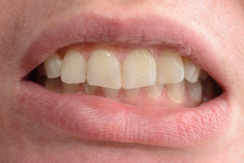 A young woman shows her crooked teeth that needs medical help in close-ups stock image