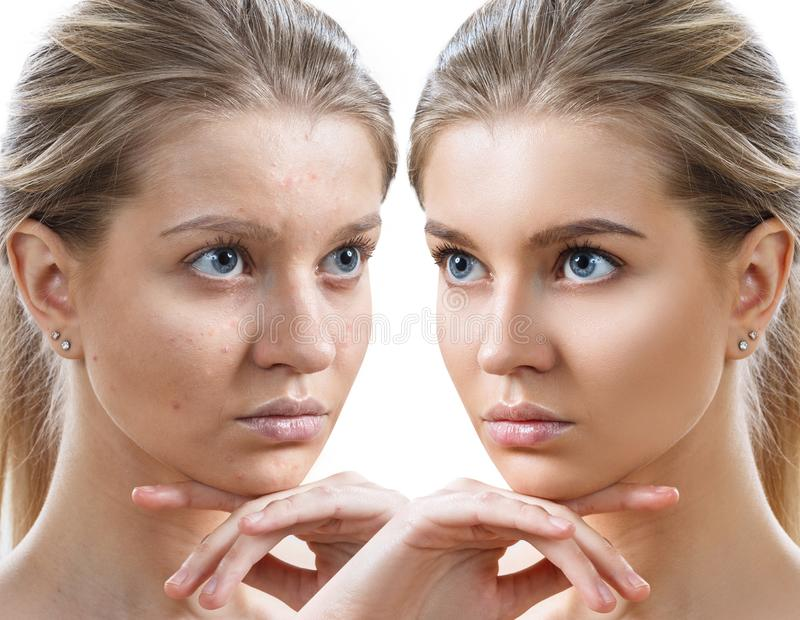 Young woman before and after skin treatment and makeup. stock photos