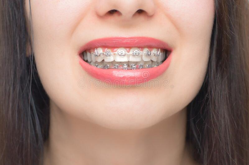 81 Braces Rubber Bands Photos Free Royalty Free Stock Photos