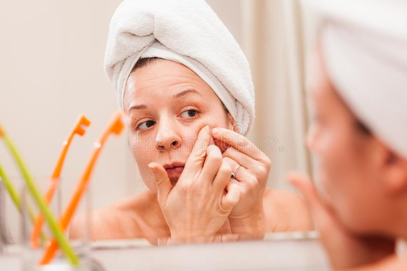 Young woman squeezing acne on her face royalty free stock photography