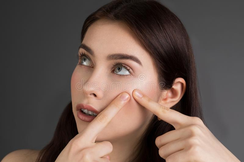 Young woman squeezing her pimple, removing pimple from her face stock image