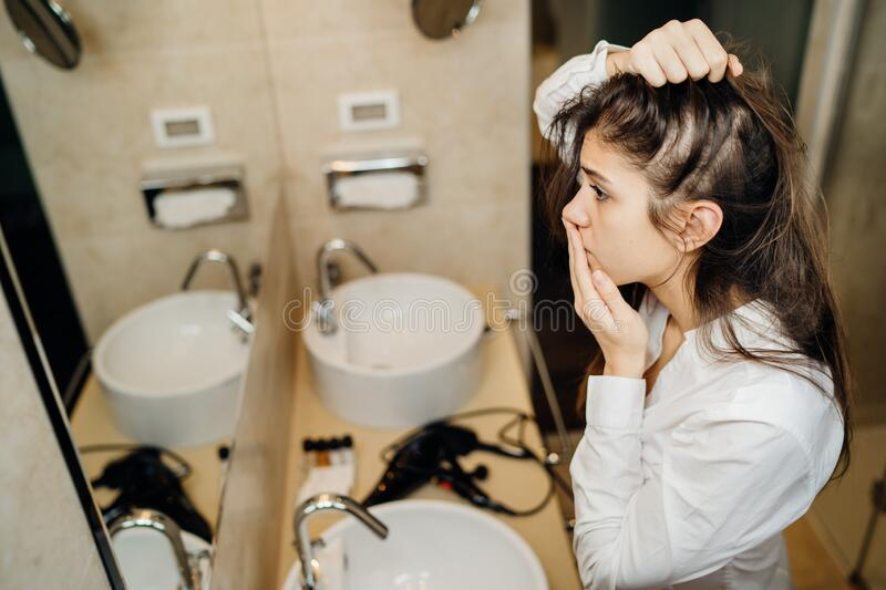 Young woman suffering from alopecia. Female hair loss.Worried female looking her hairline in the mirror.Stress caused problem, royalty free stock photo
