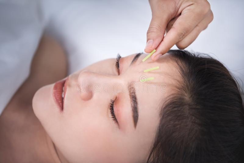 Woman undergoing acupuncture treatment on head stock photography