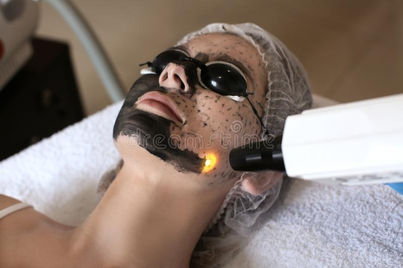 Young woman undergoing carbon peeling procedure royalty free stock photography