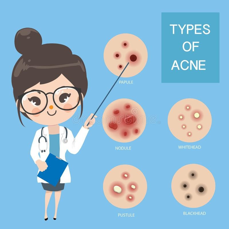 Doctors recommend typ of acne vector illustration