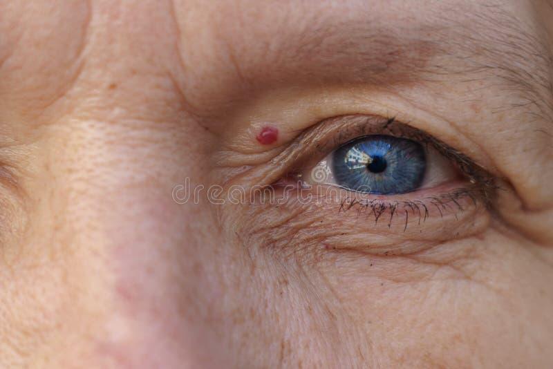 Ytterlighet kantjusterat blått öga med en behandling av hemangioma royaltyfria bilder