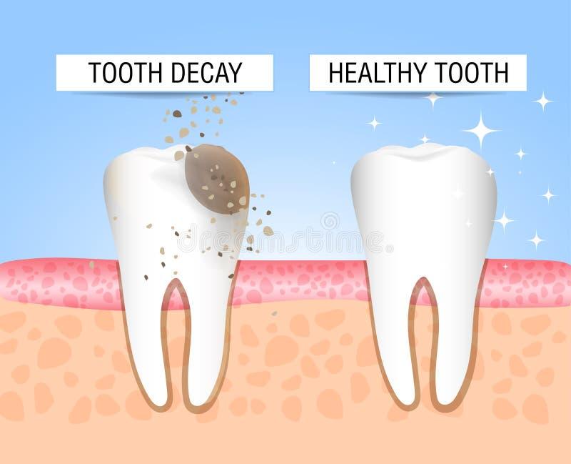 Ząb z próchnicami i zdrowym zębem Wizualna pomoc ucznie, dentyści, pacjenci klinika Porażka jest źródłem destru royalty ilustracja