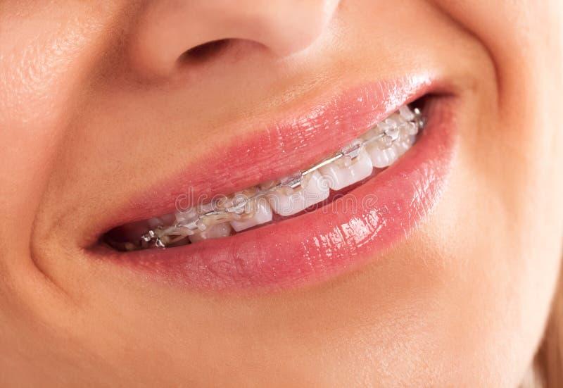 Zähne stockbilder