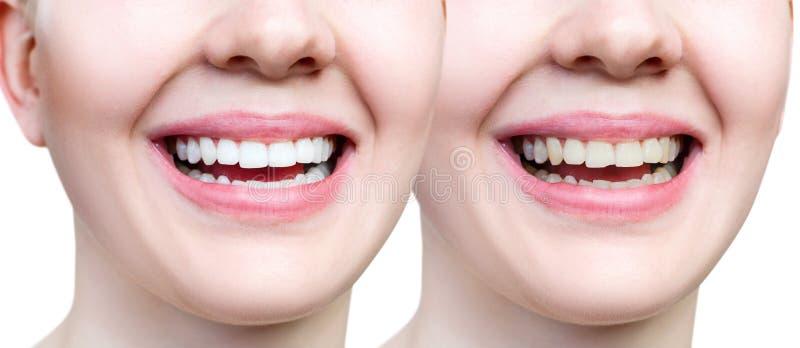 Zähne der jungen Frau vor und nach dem Weiß werden und Anhäufung stockfotografie