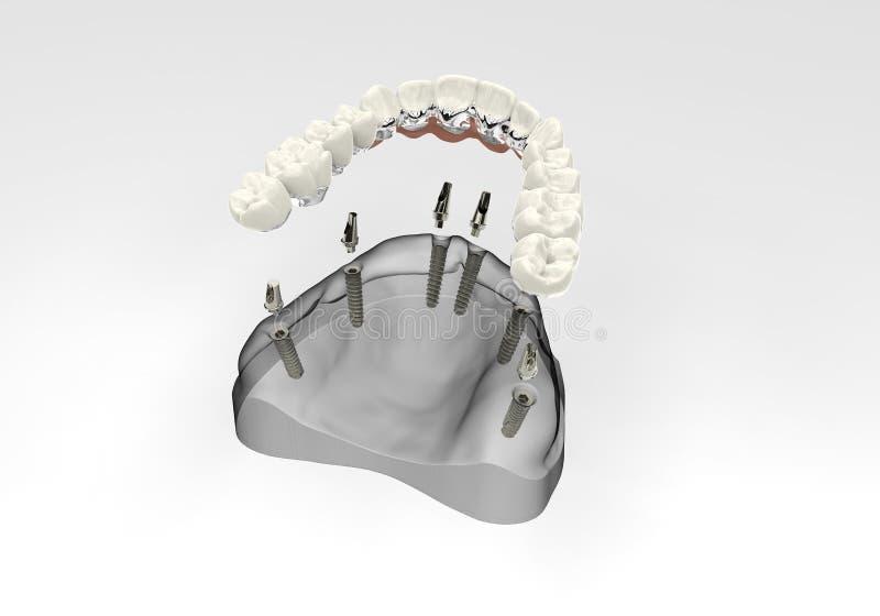 Zähne der Wiedergabe 3D lizenzfreie stockfotografie