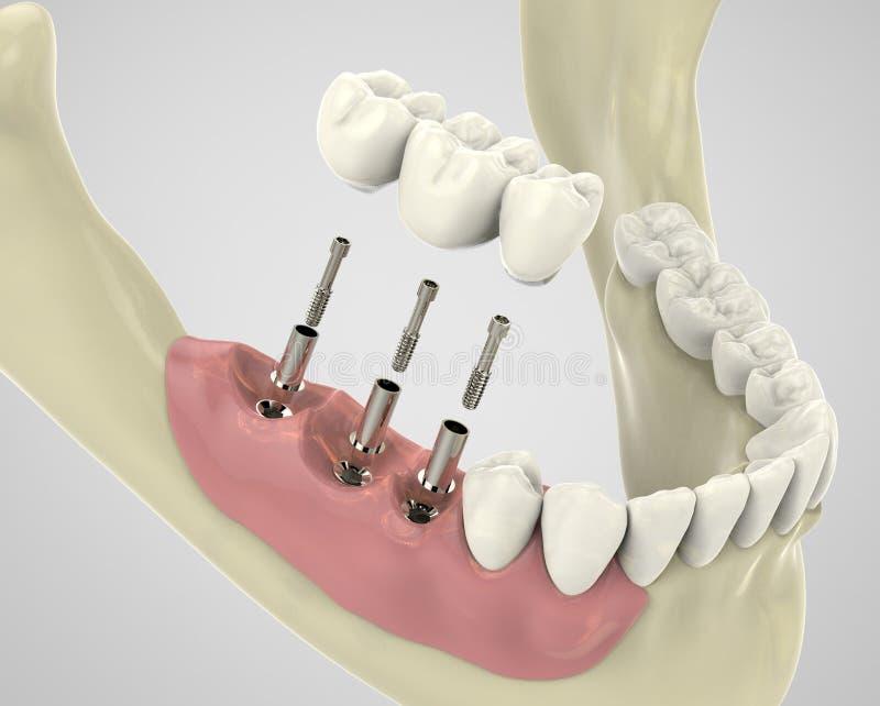 Zähne der Wiedergabe 3D stockfoto