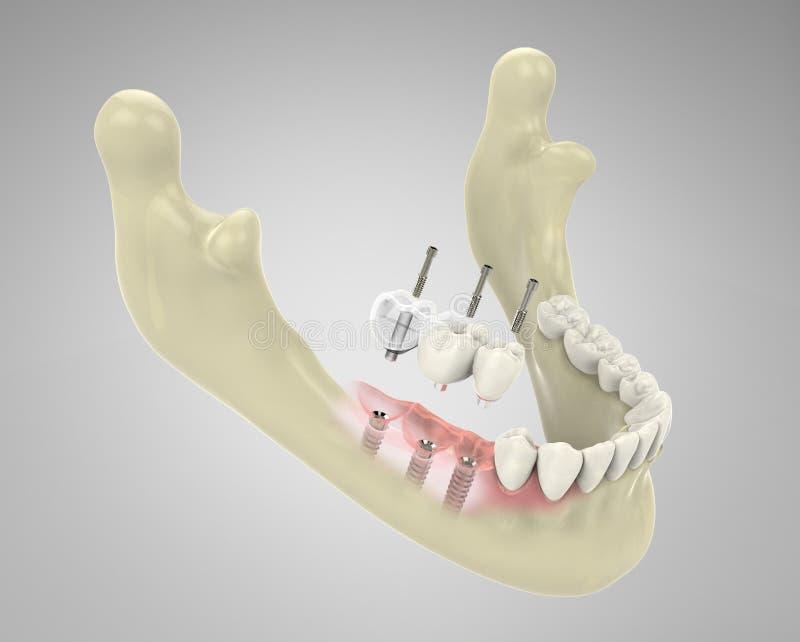 Zähne der Wiedergabe 3D stockfotos