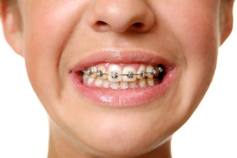 Zähne mit einem Bogen stockfotografie
