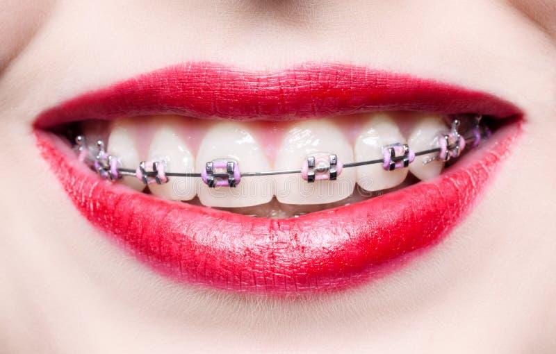 Zähne mit Klammern lizenzfreies stockfoto