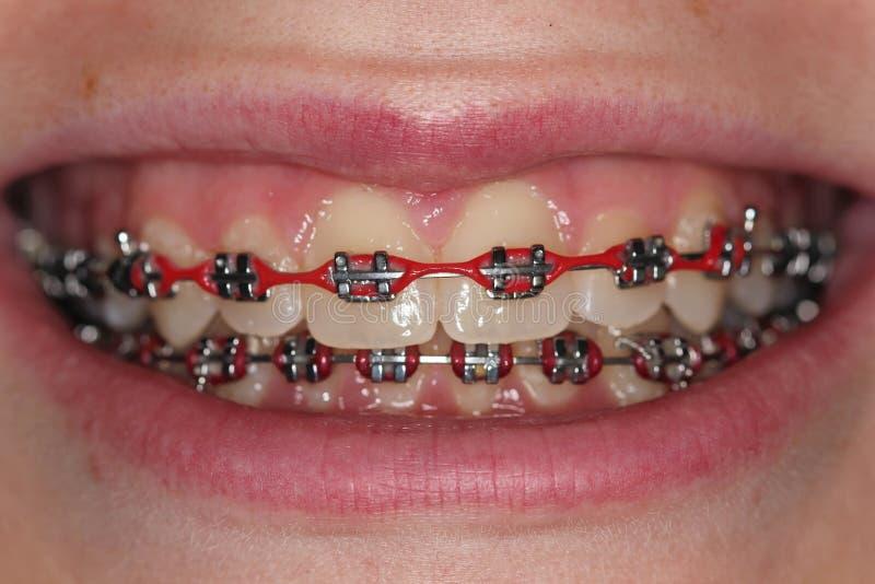 Zähne mit Metall stützt Orthodontie-Klammern ab stockbilder