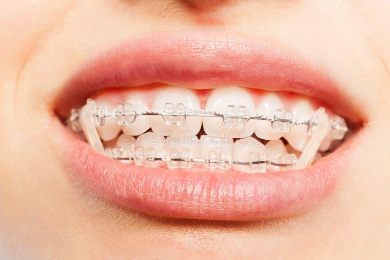 Zähne mit zahnmedizinischen Klammern und vollem Mund der Gummibänder stockfoto