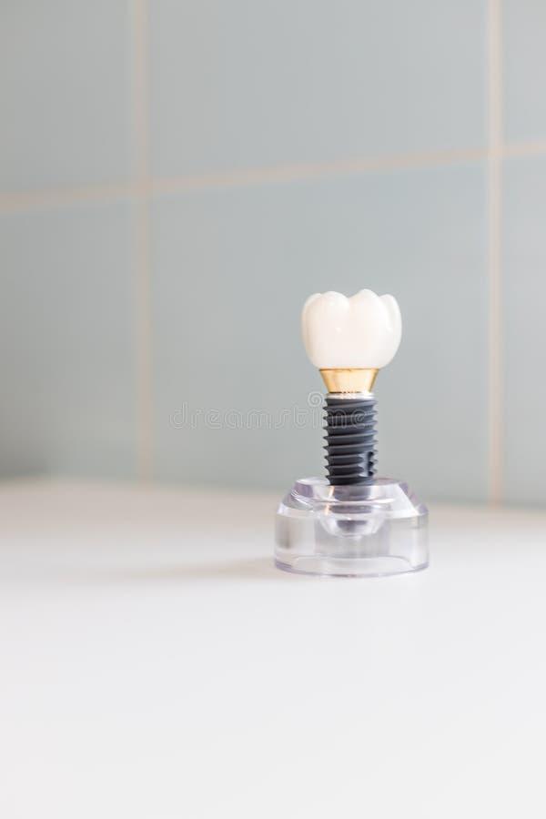 Zähne modellieren das zeigen eines Implantatskronen-Brückenmodells Zahnmedizinische Industrie Zahnimplantat oder endosseous Zahn  stockfotografie