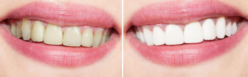 Zähne vor und nach dem Weiß werden lizenzfreies stockfoto