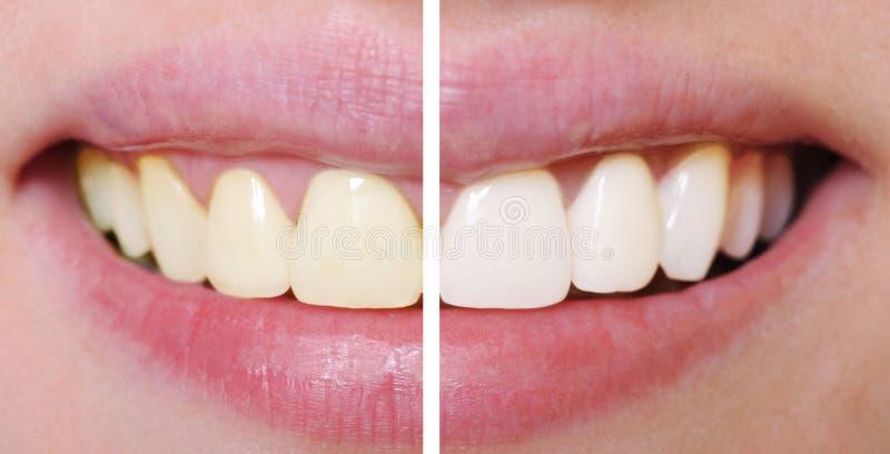 Zähne vor und nach dem Weiß werden lizenzfreie stockfotos