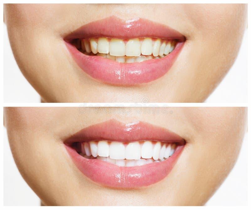 Zähne vor und nach dem Weiß werden stockfotos