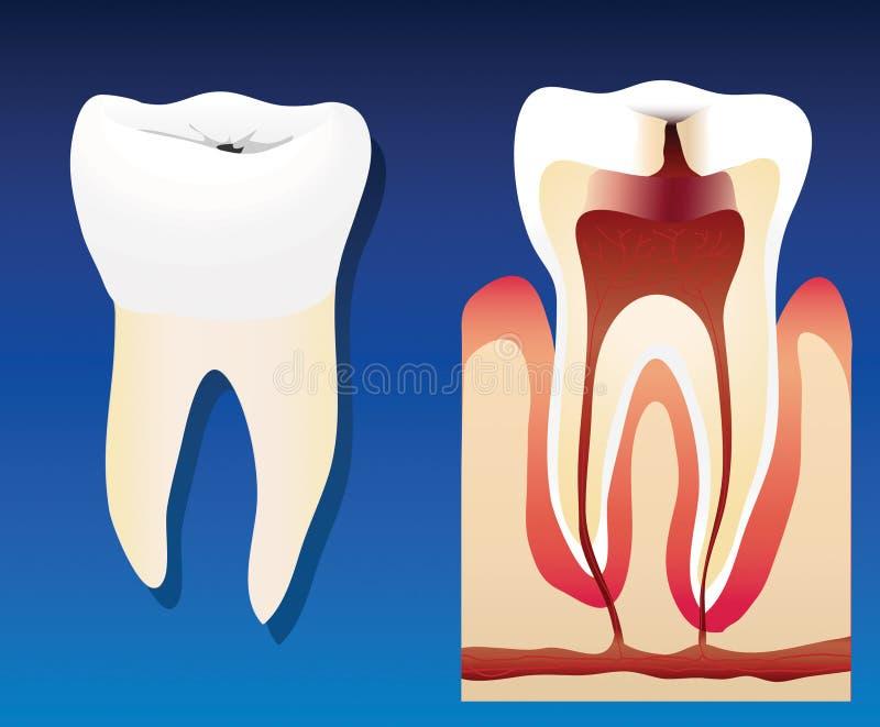 ząb niezdrowy ilustracja wektor