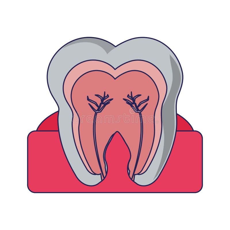 Ząb z nerwowym w dziąśle ilustracja wektor