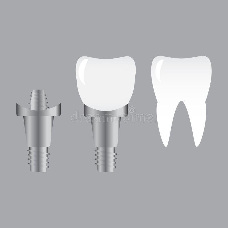 Zębów wszczepy i normalny ząb odizolowywający na białym tle Śrubowy wszczep, stomatologiczny inplant ząb ilustracji