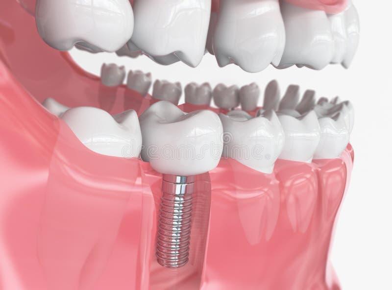 Zębu ludzki wszczep - 3d rendering obraz stock