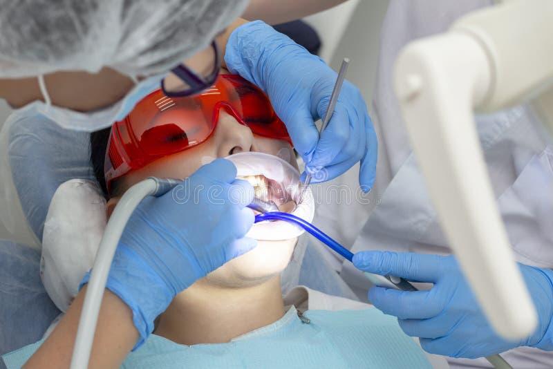 Zębu traktowanie, próchnicy traktowanie bora maszyna prewencyjny egzamin przy dentysta próchnicami w zębie na wierzchołku dziewcz zdjęcia stock