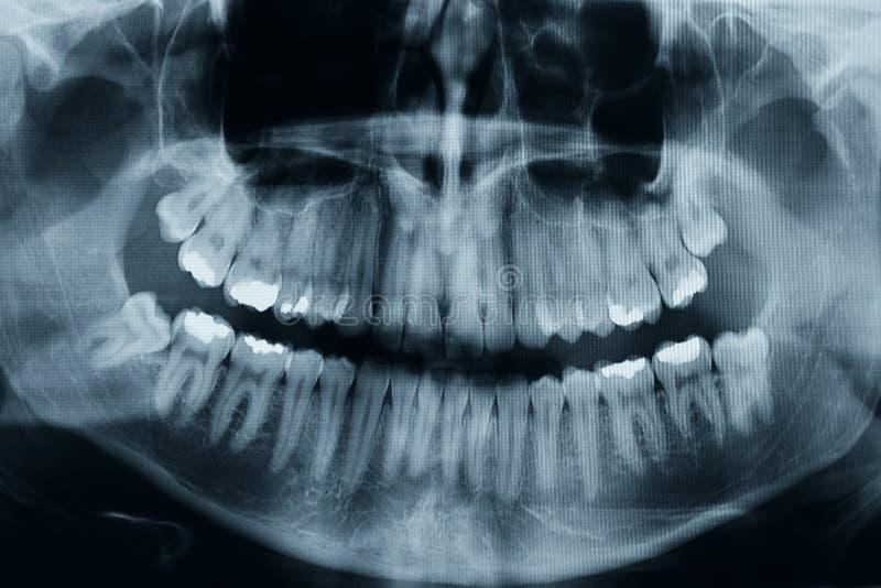 Zębu xray zdjęcie stock