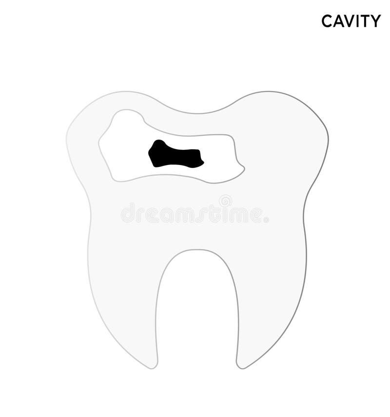 Zębu zagłębienia ikony symbolu editable projekt ilustracja wektor