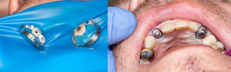 Zęby podczas traktowania w górę stomatologicznej kliniki wewnątrz Stomatologiczna fotografia fotografia royalty free