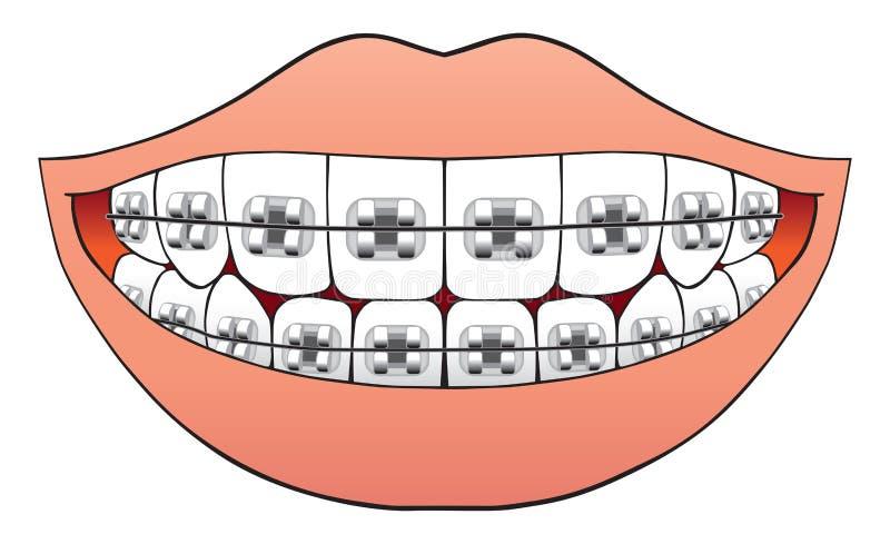 Zęby z brasami royalty ilustracja