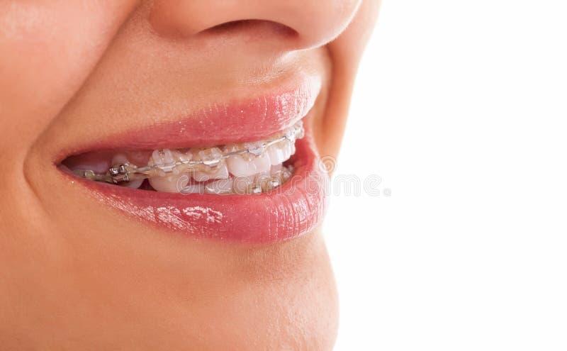 Zęby z brasami fotografia royalty free