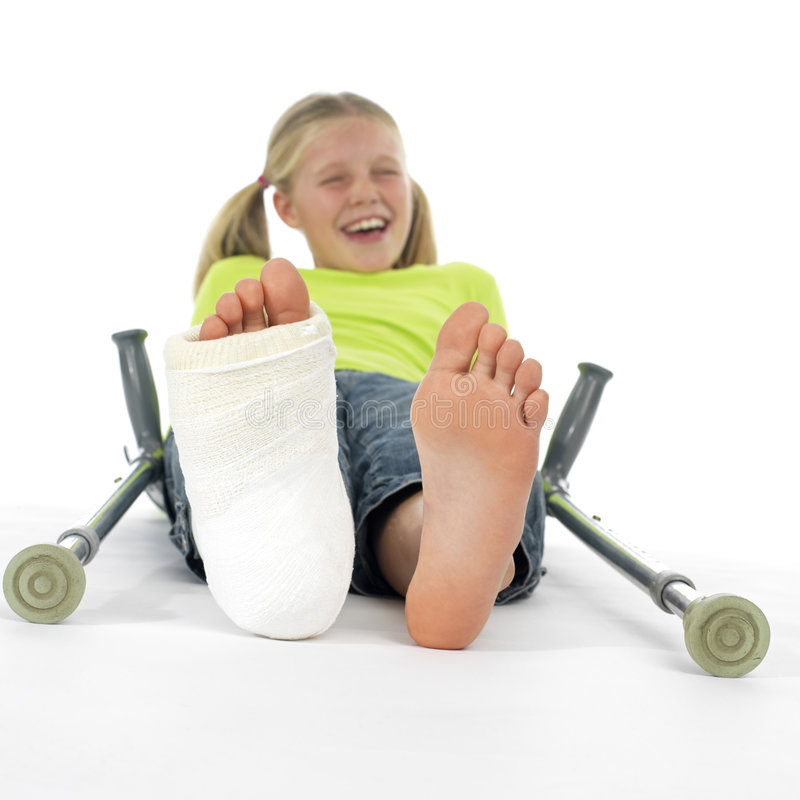 złamana noga dziewczyny fotografia royalty free