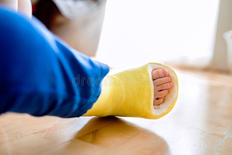 Złamana noga w obsadzie unrecognizable chłopiec zdjęcia stock