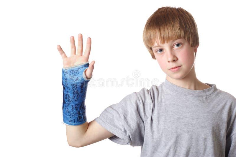 złamany nadgarstek, zdjęcie stock