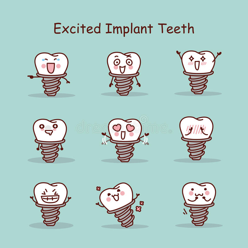 Z podnieceniem kreskówka zębu wszczepu set ilustracja wektor