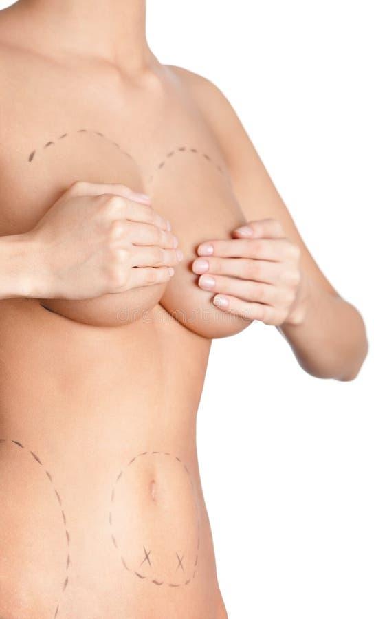Z pomocą chirurgii plastycznej ciało korekcja zdjęcia royalty free