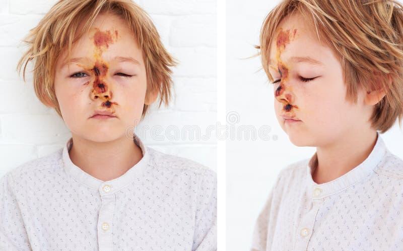 Zachte weefselkneuzing, uitgebreid oedeem van jong jongensgezicht, als resultaat van een daling van een fiets stock foto's