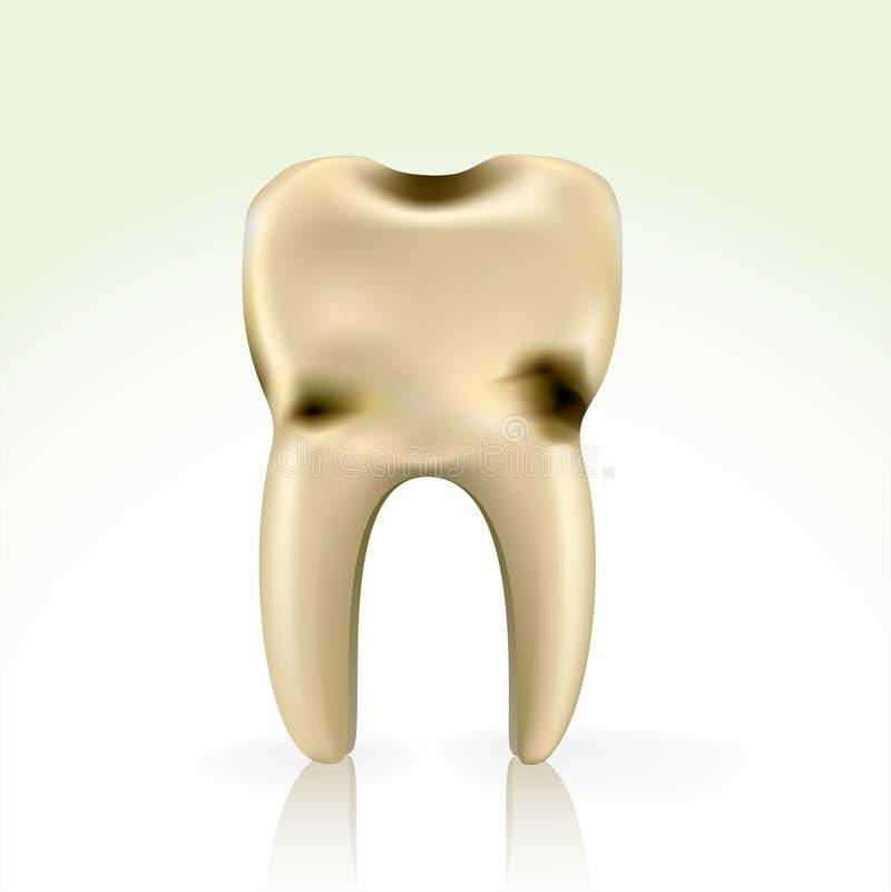 zagłębienia zębu niezdrowy kolor żółty ilustracja wektor