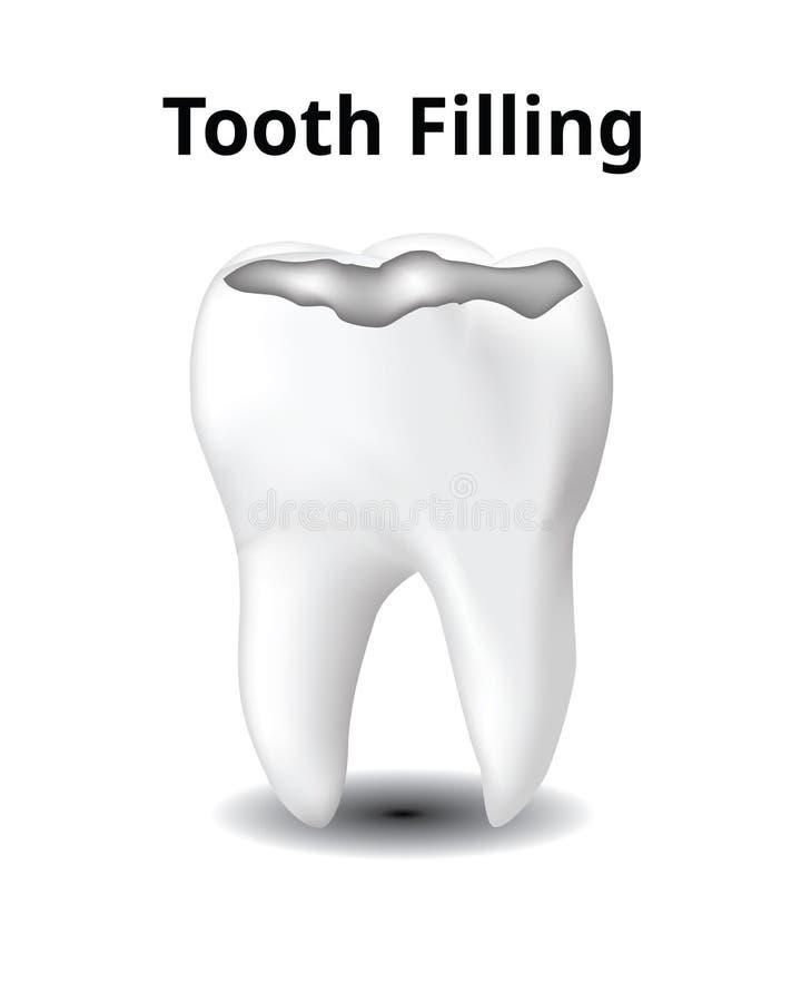 Zahn-Füllung, lokalisiert auf weißem Hintergrund, lizenzfreie abbildung