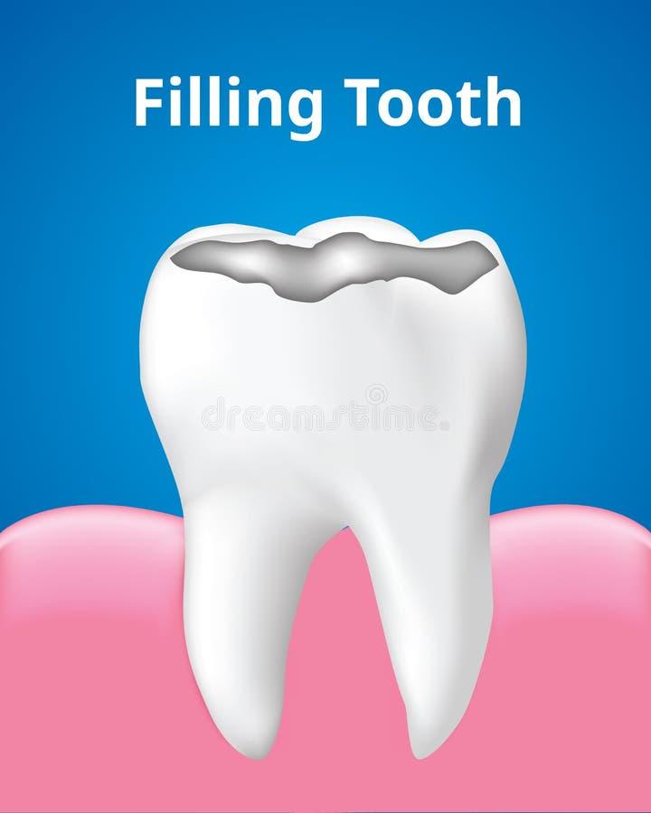 Zahn-Füllung mit Zahnpflegekonzept des Gummis, realistischer Entwurf Vektor lizenzfreie abbildung