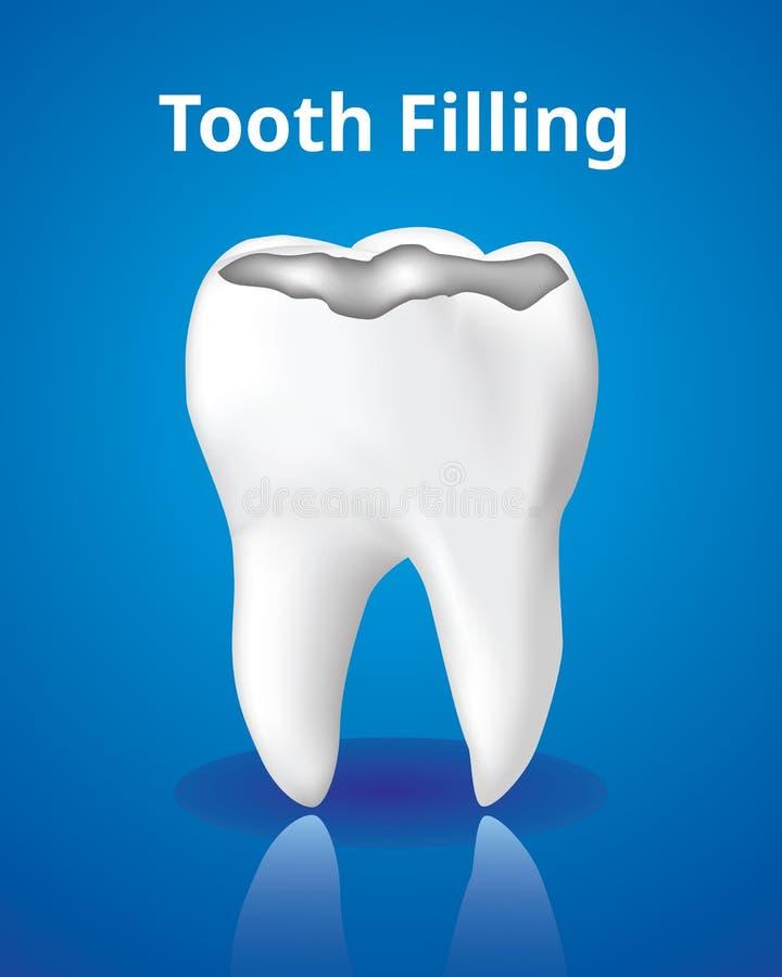Zahn-Füllung, Zahnpflegekonzept, realistischer Entwurfsillustration Vektor vektor abbildung